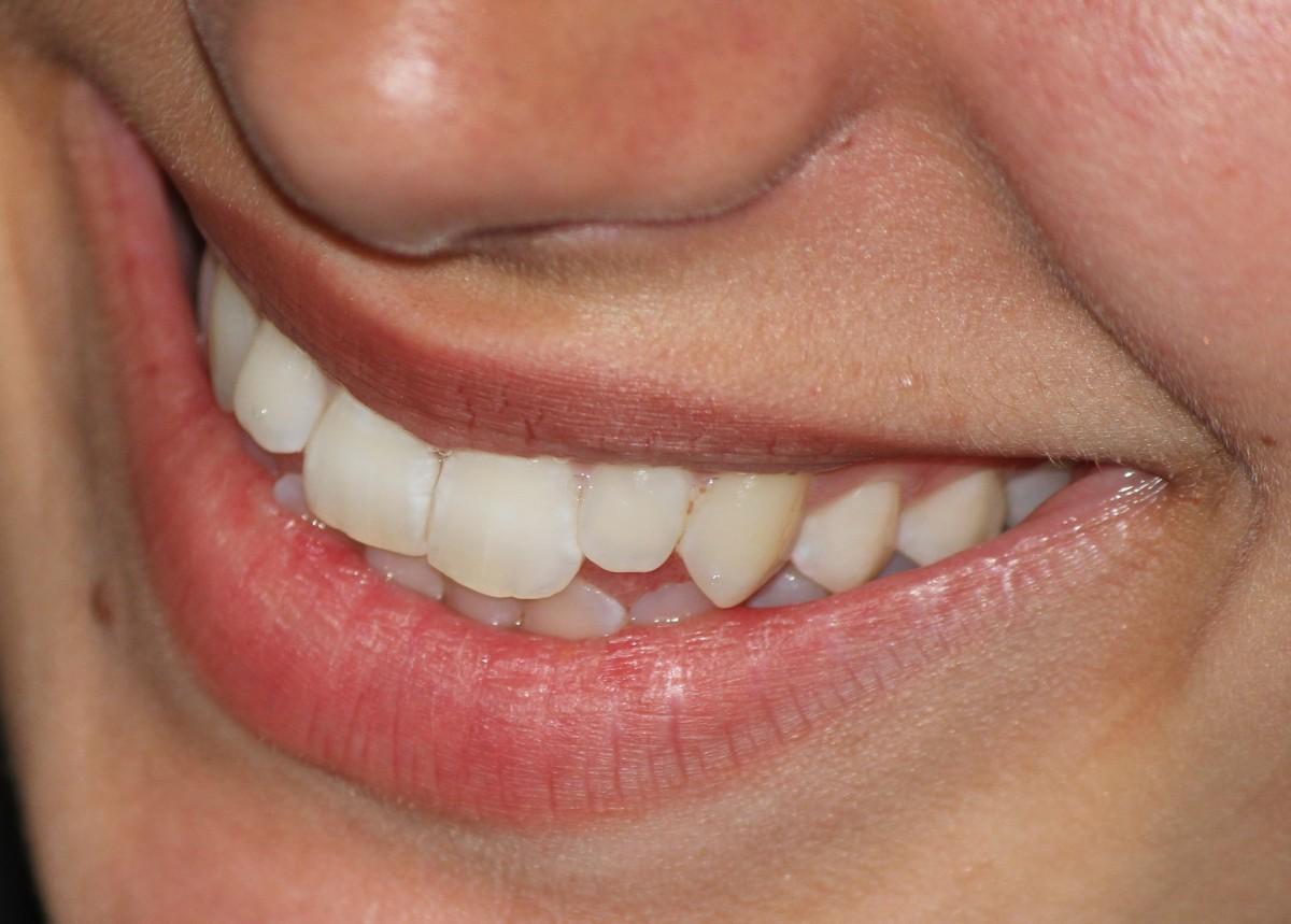 pied Expression faciale lèvre sourire bouche fermer corps humain visage nez joue content langue organe les dents dent mâchoire menton