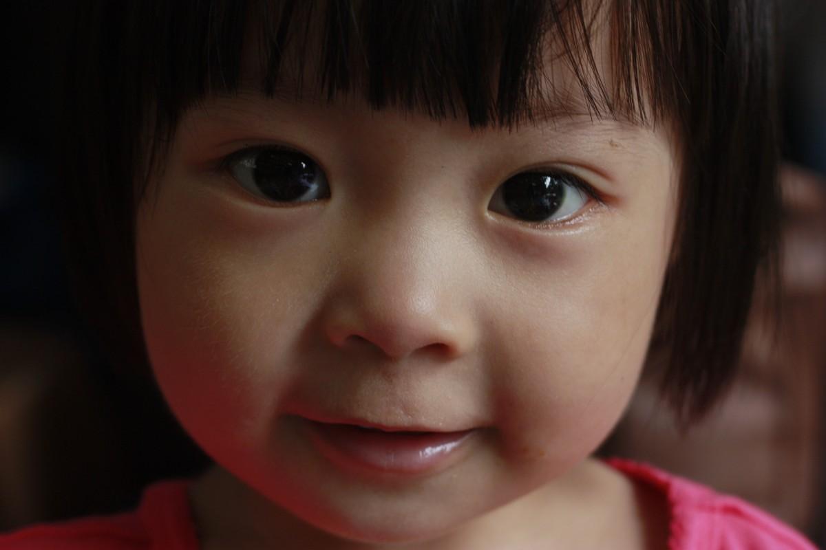Фото ребенка без глаза