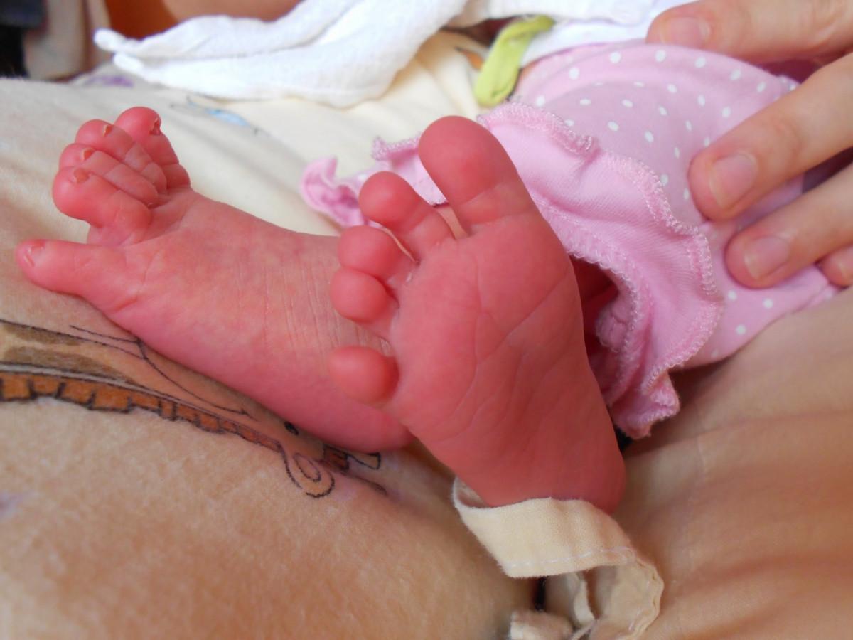 Короткие ножки у ребенка фото