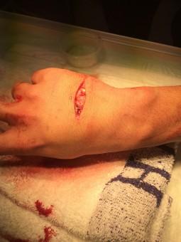 Gambar Jatuh Kaki Jari Retak Lengan Kuku Bibir Merapatkan Tubuh Manusia Darah Mata Berdarah Organ Kecelakaan Cedera Menyakitkan Pencarian Luka Melukai Terluka Merasakan Penyucian Ablederung Kulit Off Punggung Tangan 4000x3000