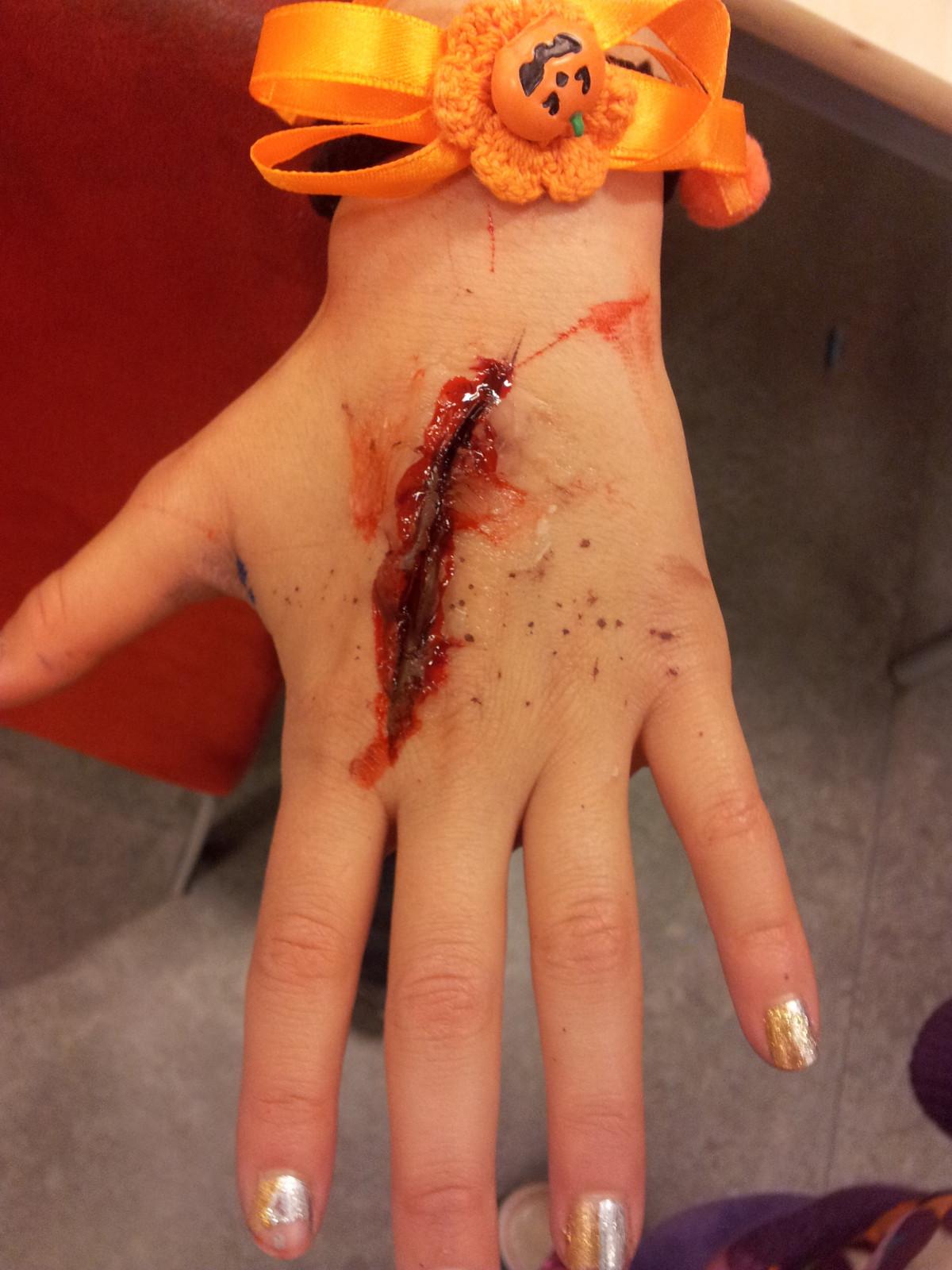 Раны кровь картинки