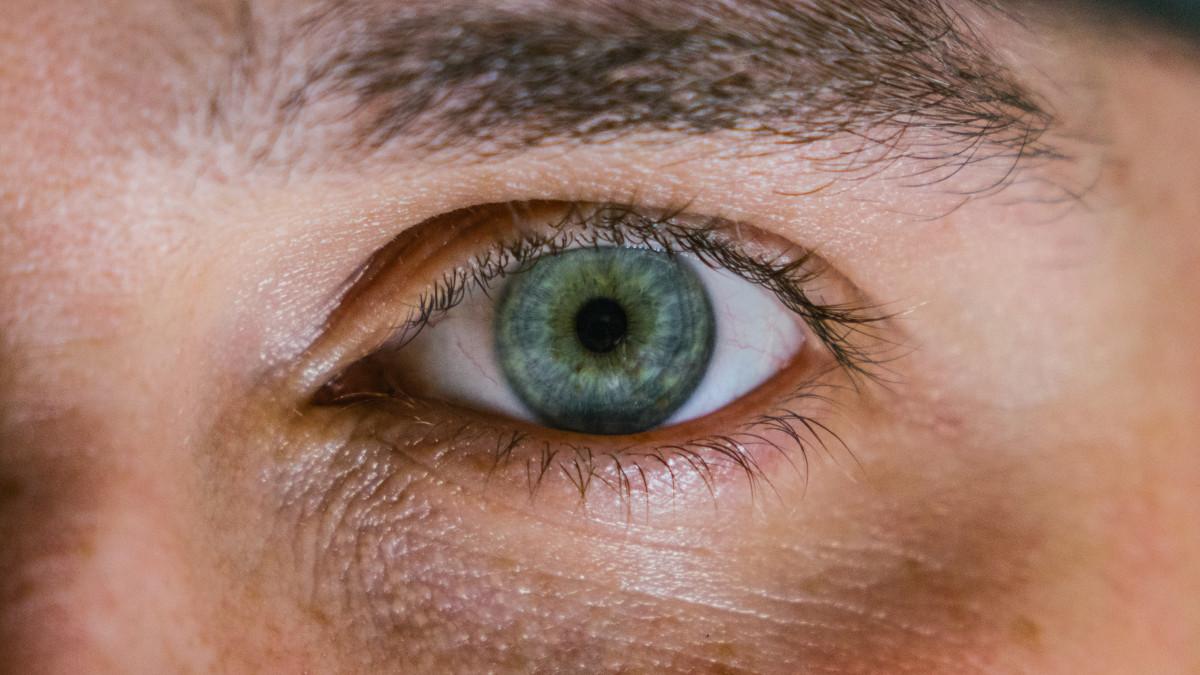 Коричневые круги под глазами у ребенка фото