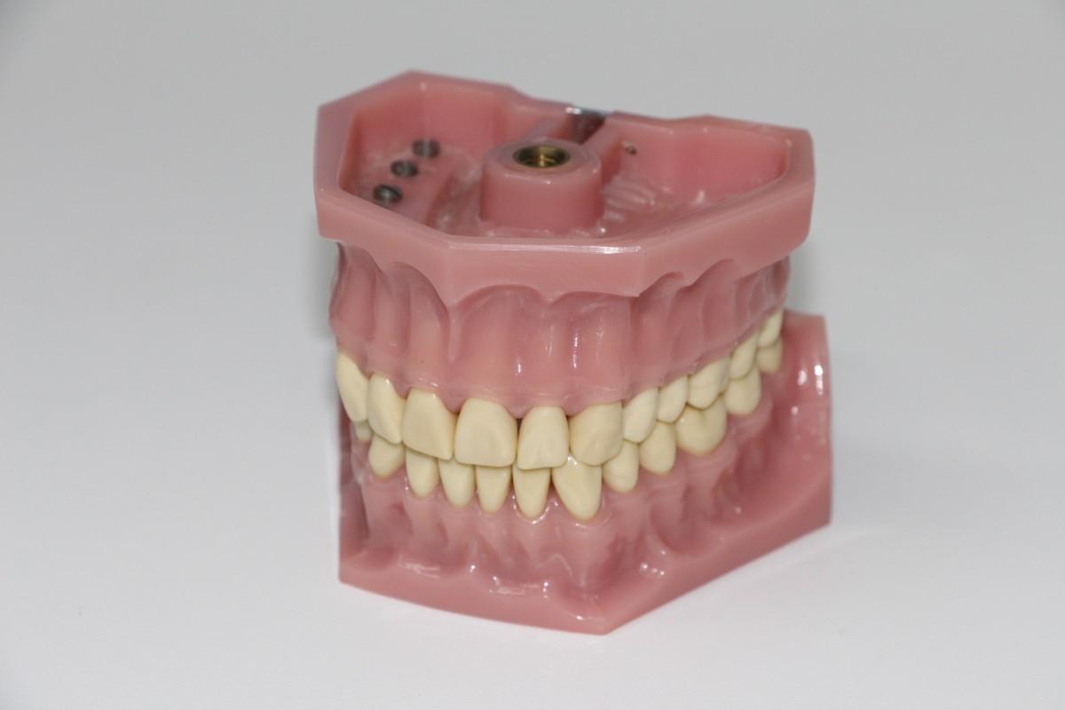 rose bouche dentiste corps humain organe dent dentiers Zahnarztpraxis Traiter les dents instruments dentaires brosser les dents mâchoire Dentures Mettre la morsure Équipement dentiste Médecin de la dent Réparer les dents Intervention dentaire Instruments de meulage de dents Zahnbohraufsatz Zahnreinigung Réparations dentaires Attraper les dents