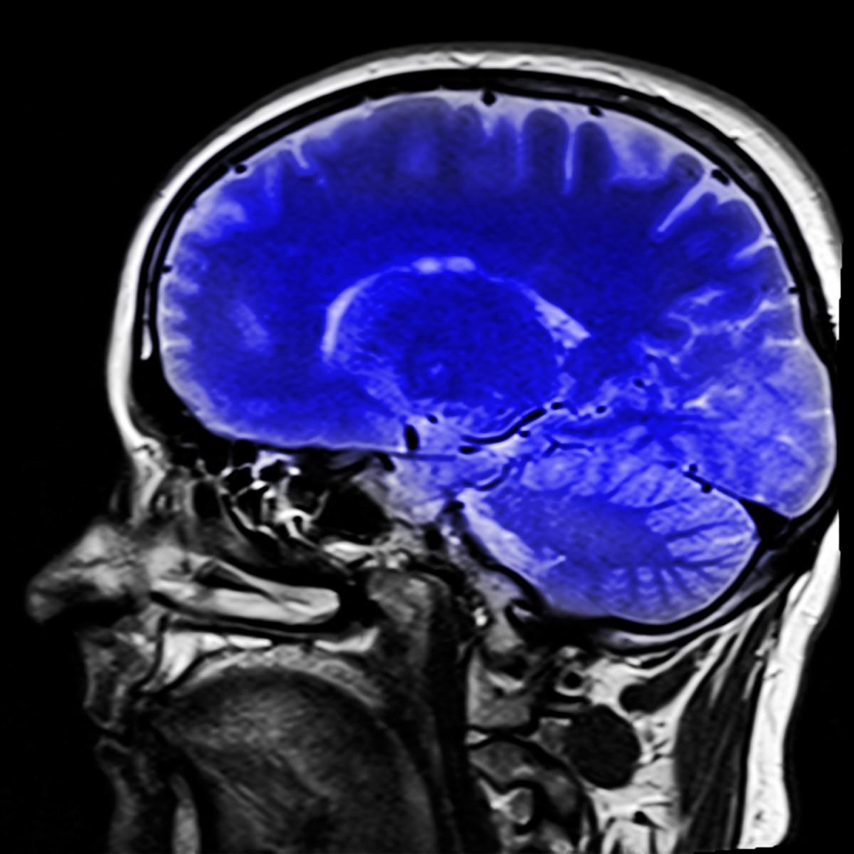 otak untuk menyimpan memori