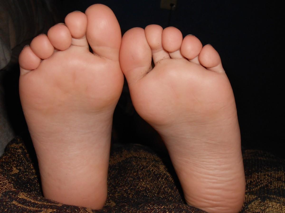 Occhio di pernice piede foto 87